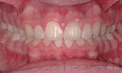 After Picture of Wisdom Tooth Removal Gatineau