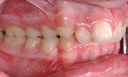 Before Picture of Lingual Braces Treatment Gatineau