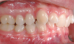 Before picture of Dental Transformations in Alymer