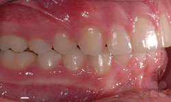After Picture of Invisible alternative to traditional braces Treatment