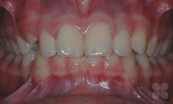 Before Picture of Dental Space Correction Gatineau