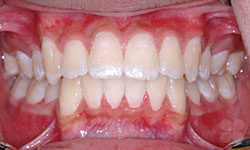After Picture of Hull Damon Braces Treatment