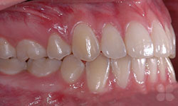 After Picture of Teen Orthodontic Care  Alymer