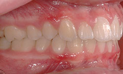 After Picture of Dental Care Service Gatineau